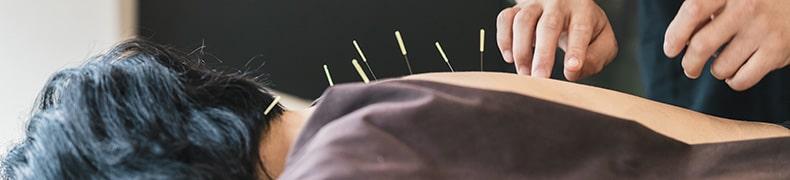 鍼灸に適応する様々な症状